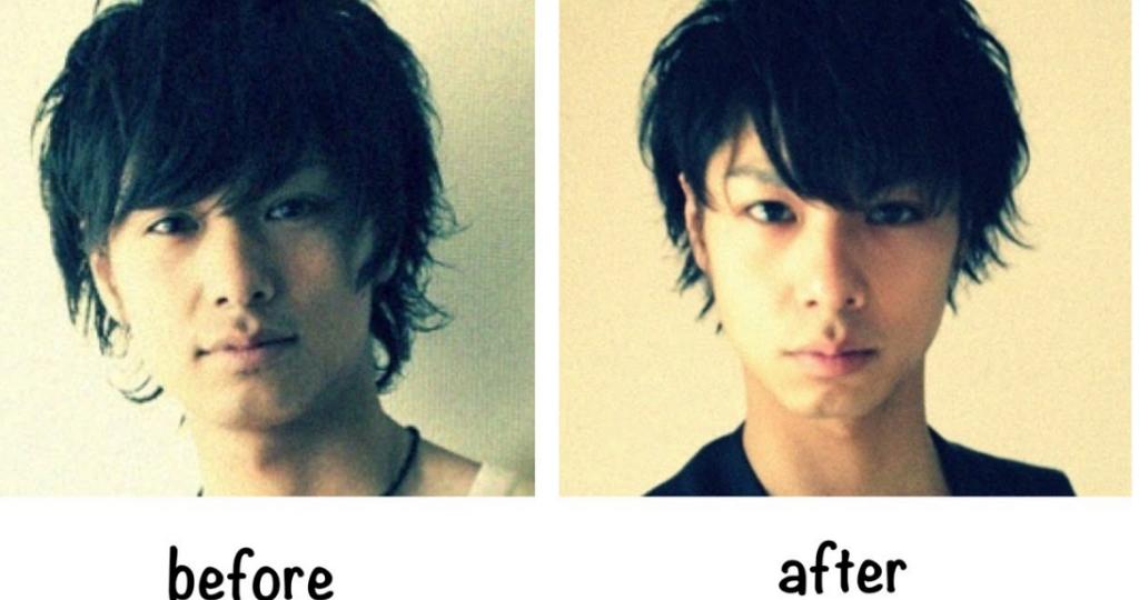 俳優野田圭佑顔のたるみ即効解消