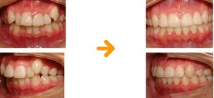 八重歯マウスピース矯正治した