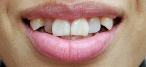 八重歯マウスピース矯正