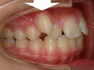 八重歯犬歯マウスピース矯正