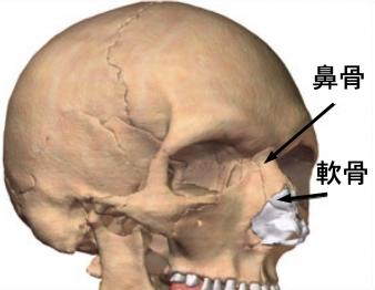 鼻を高くする方法鼻軟骨
