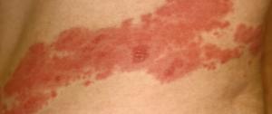 帯状疱疹帯状