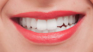 歯ホワイトニング
