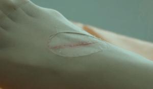 ひっかき傷のミミズ腫れ