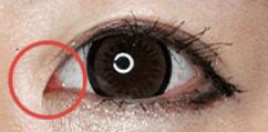 目頭を切開すると、高確率で目の中のピンク部分が見えるんですよね。